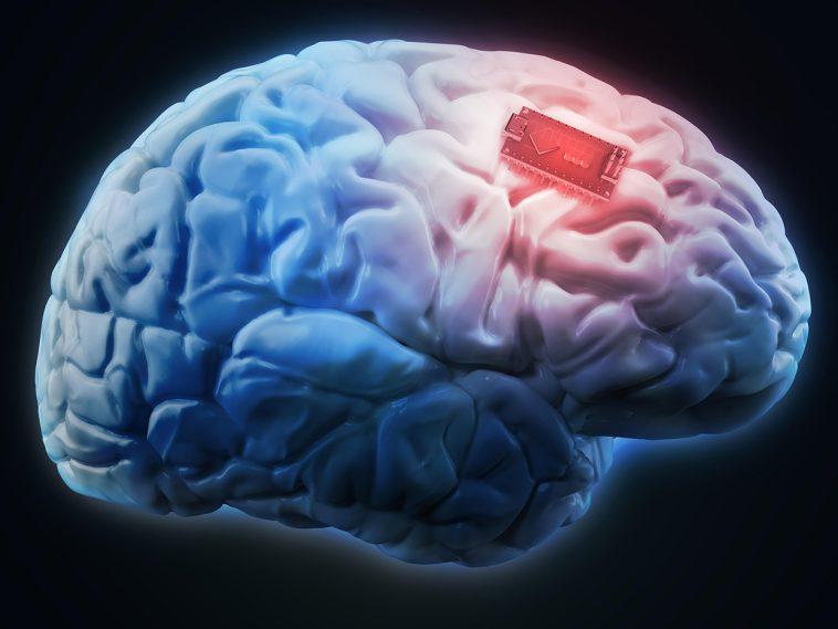 neural implant technology ¿Qué tan cerca están los implantes neuronales de convertirse en realidad?
